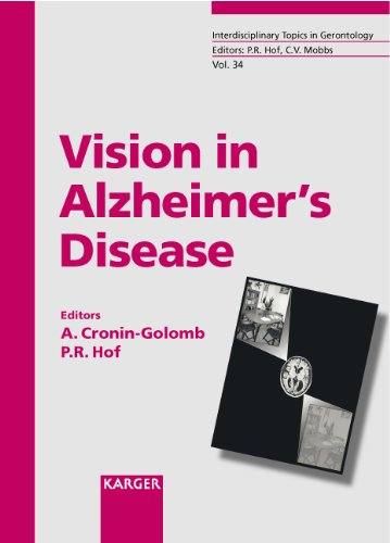 VISION IN ALZHEIMER'S DISEASE