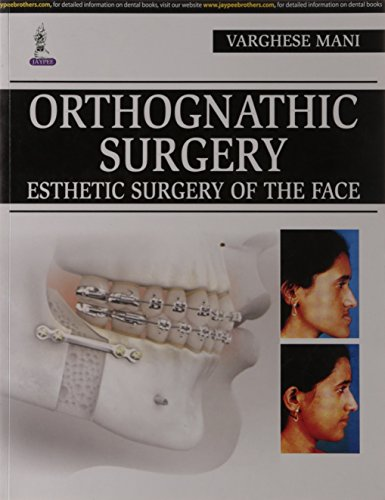 ORTHOGNATHIC SURGERY ESTHETIC SURGERY OF THE FACE