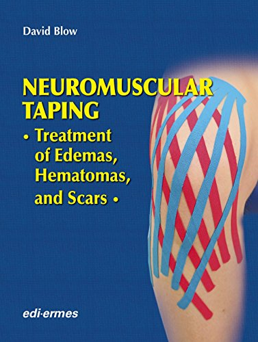 NEUROMUSCULAR TAPING: TREATMENT OF EDEMAS, HEMATOMAS AND SCARS (HB)