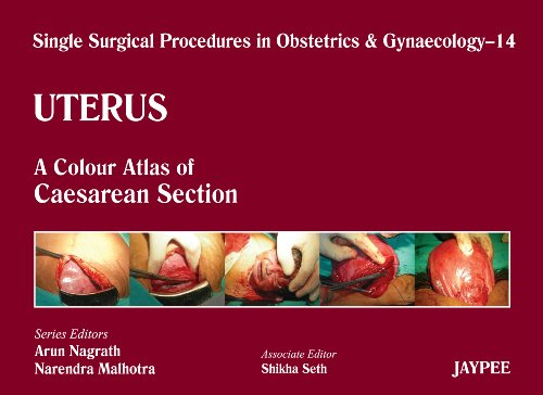 SINGLE SURGICAL PROCEDURES IN OBSTETRICS AND GYNAECOLOGY-14:  UTERUS - A COLOR ATLAS OF CAESAREAN SECTION,