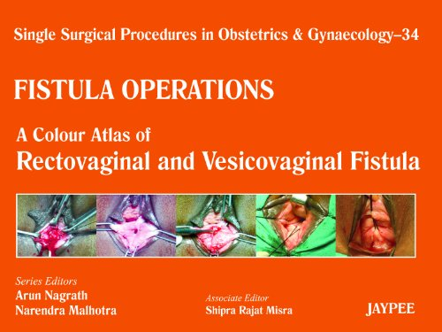 SINGLE SURGICAL PROCEDURES IN OBSTETRICS AND GYNAECOLOGY–34: FISTULA OPERATIONS - A COLOUR ATLAS OF RECTOVAGINAL AND VESICOVAGINAL FISTULA,