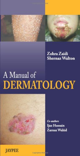 A MANUAL OF DERMATOLOGY                                                                                                                     ,