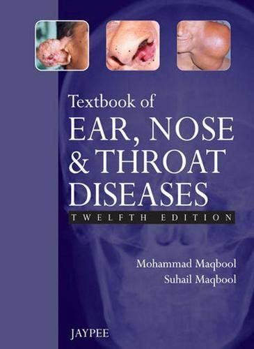 TEXTBOOK OF EAR, NOSE AND THROAT DISEASES 12ED.