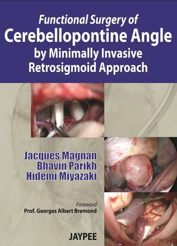 FUNCTIONAL SURGERY OF CEREBELLOPNTINE ANGLE BY MINIMALLY INVASIVE RETROSIGMOID APPROACH 1ED.