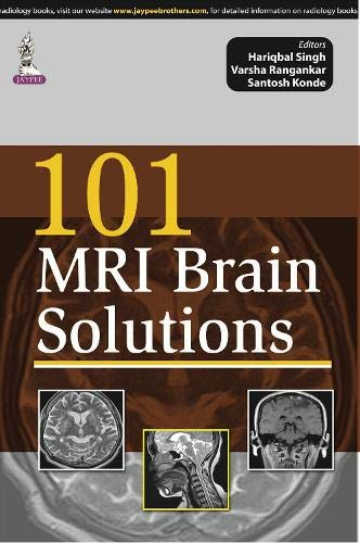 101 MRI BRAIN SOLUTIONS 1ED.