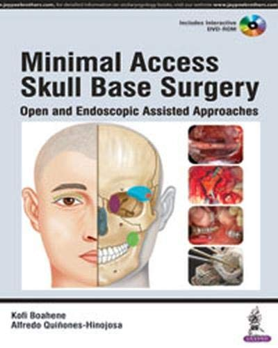 MINIMAL ACCESS SKULL BASE SURGERY: OPEN AND ENDOSCOPIC ASSISTED APPROACHES 1ED.