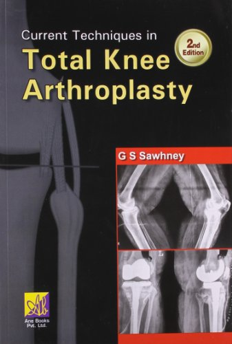 CURRENT TECHNIQUES IN TOTAL KNEE ARTHROSCOPY, 2ED