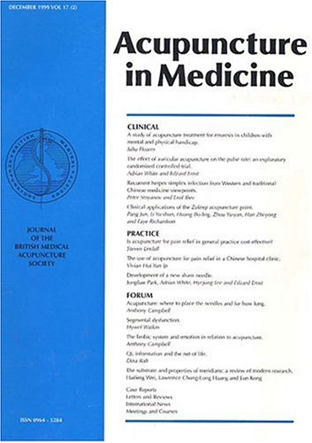 Image result for acupuncture in medicine